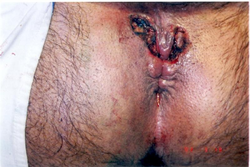Wound Care For An Anal Fistulotomy 72
